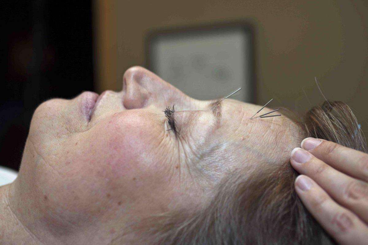Rejuvenation Acupuncture