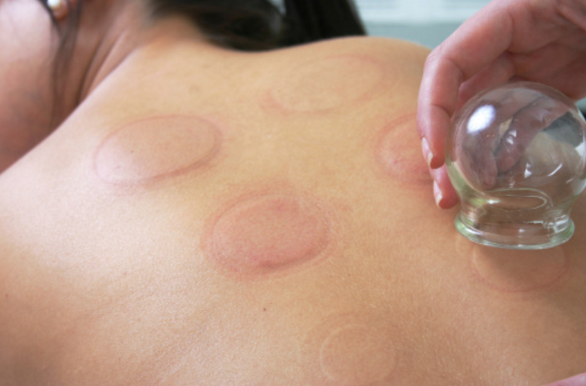 How Cupping Complements Acupuncture